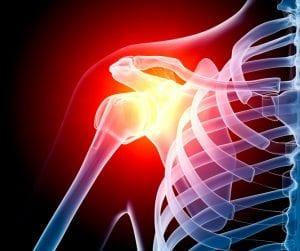 Shoulder Injury X-Ray