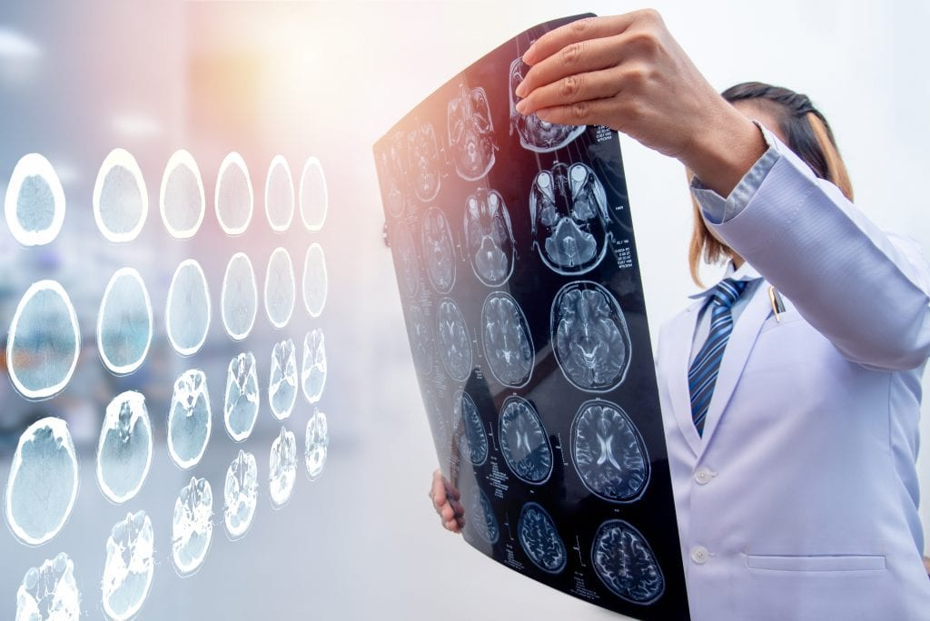Doctor reading images of patient's brain injuries