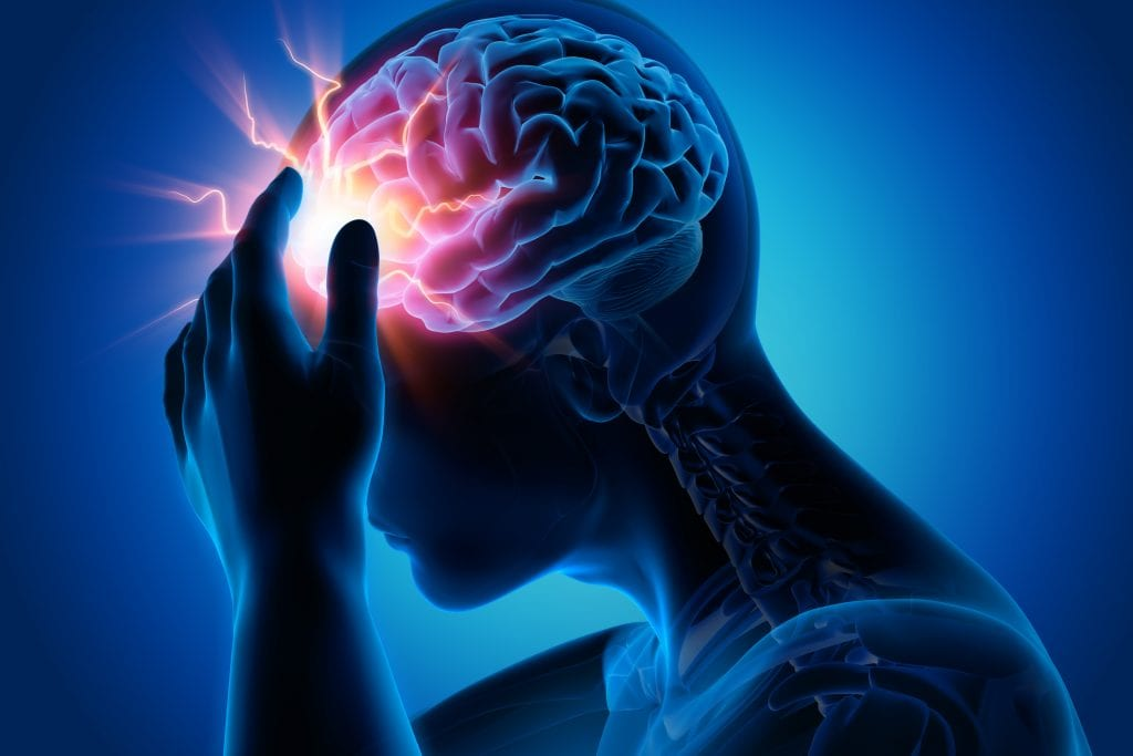 3D image of post concussion syndrome after traumatic brain injury
